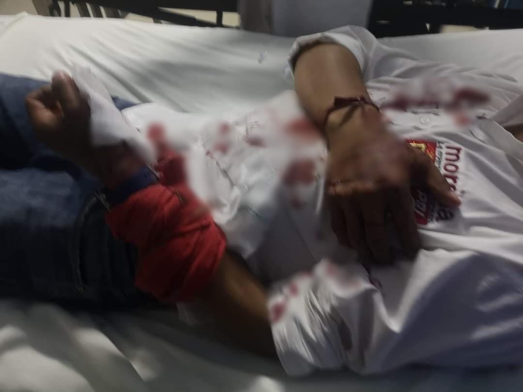 El candidato de MORENA a la alcaldía de Santa Clara Ocoyucan, Francisco Cortés Pancoatl, resultó herido en la mano tras sufrir un ataque a balazos. Crédito: Juan Carlos Valerio
